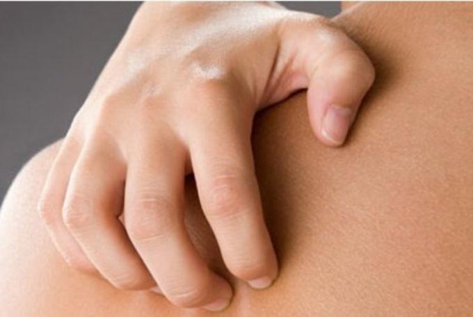 Жжение кожи тела причины