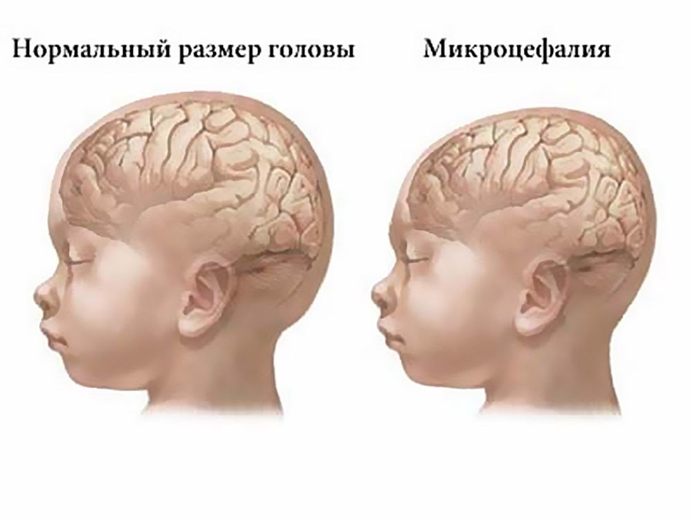 уменьшение размеров мозга и черепа
