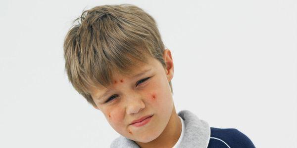 Как выглядит краснуха у детей фото начальная стадия