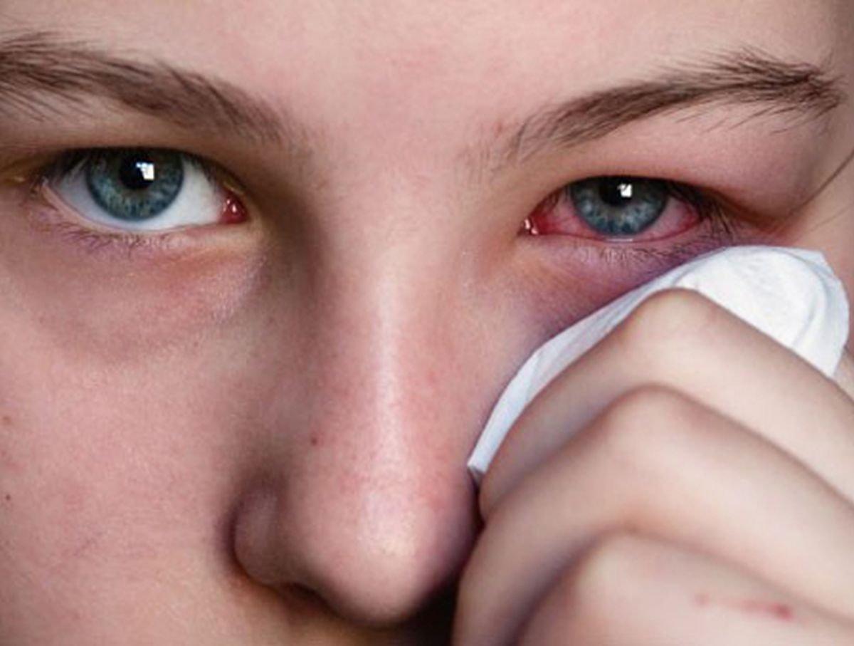 Ячмень на глазу как лечить быстро дома народными средствами