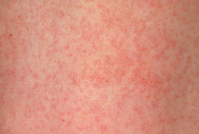 Прививка краснуха как переносится в 1 год, реакция