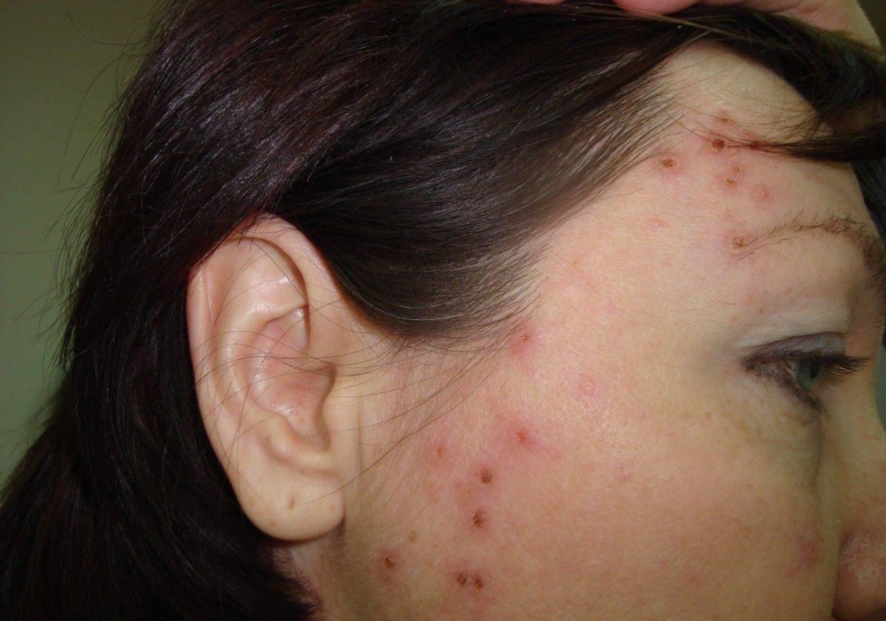 Сифилитическая сыпь фото у женщин и симптомы