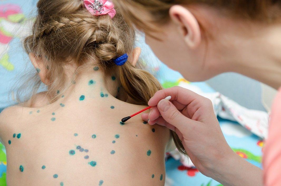 Противовирусные препараты при ветрянке у детей