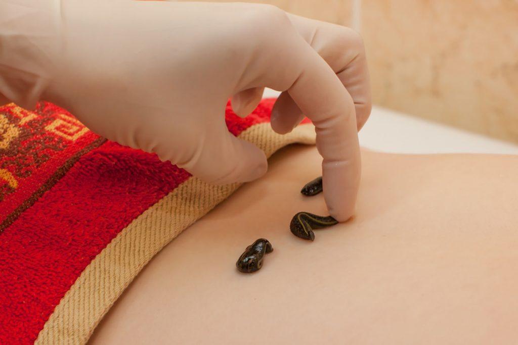 Эндометриоз лечение народными средствами