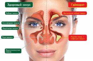 Гайморит симптомы и лечение в домашних условиях