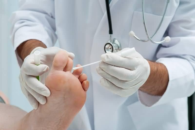 Какой врач лечит грибок на ногтях ног