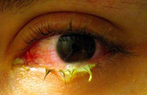 Конъюнктивит глаз у детей фото