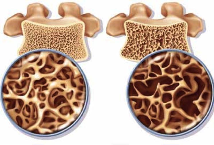 Кто больше всего подвержен остеопорозу из взрослых: мужчины или женщины