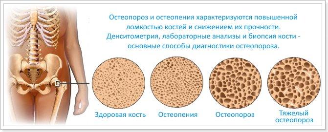 Остеопороз начальной стадии