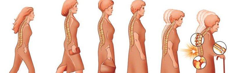 Остеопороз симптомы