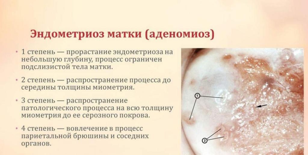 Аденомиоз матки что это такое