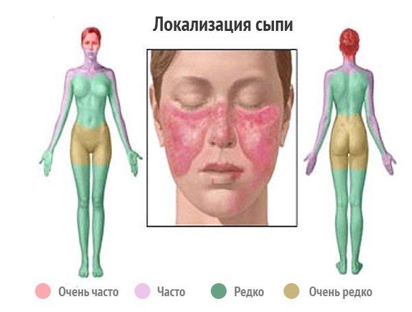 Волчанка  фото симптомы и места развития