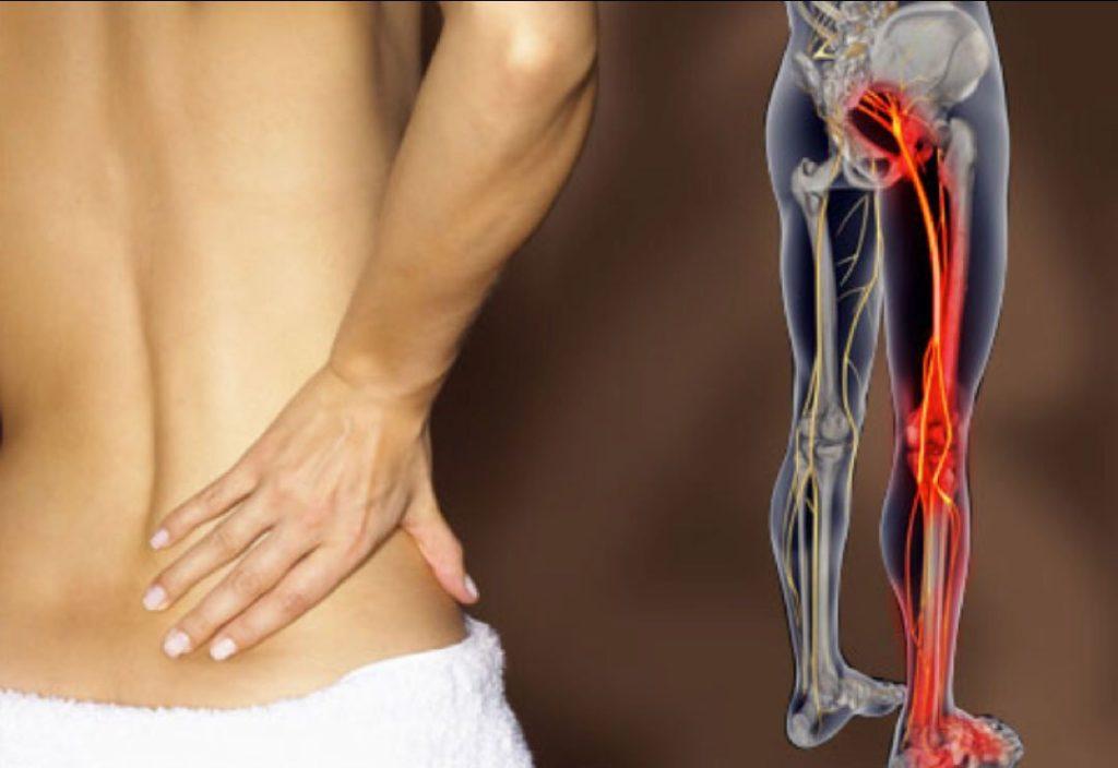 Боль отдает в ногу, спину, при ходьбе, когда садишься