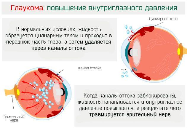 Глаукома причины симптомы лечение и профилактика