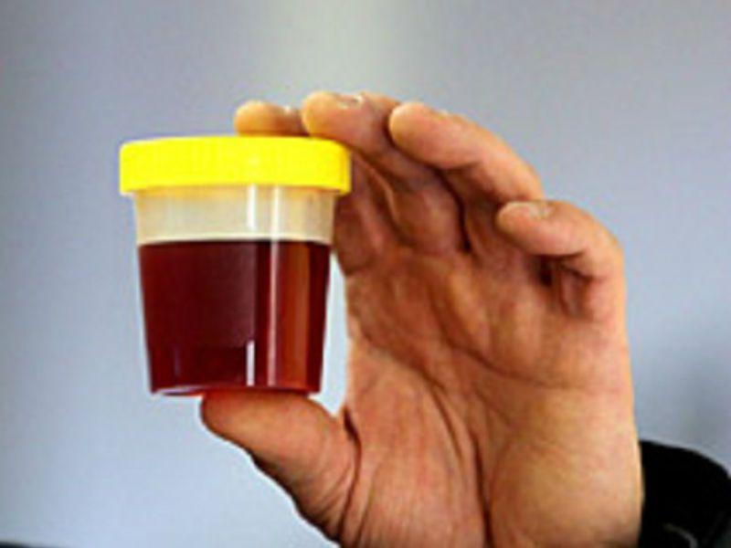 Цистит с кровью у женщин лечение