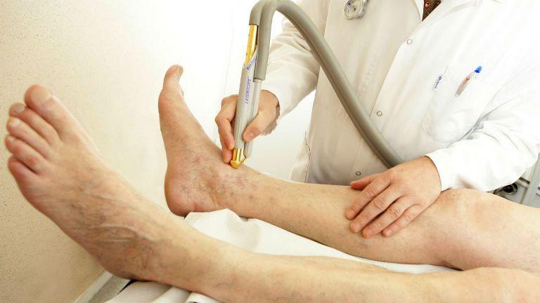 Варикозное расширение внутренних вен на ногах