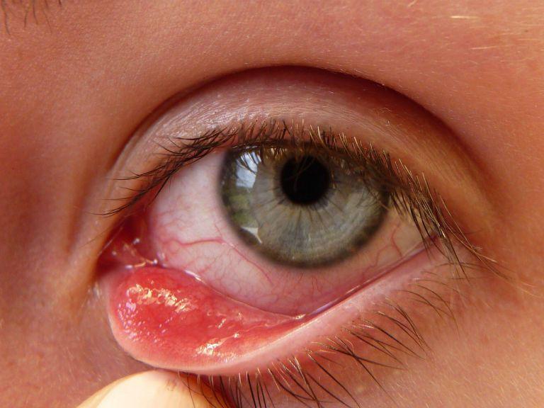 Ячмень на глазу причины появления и лечение