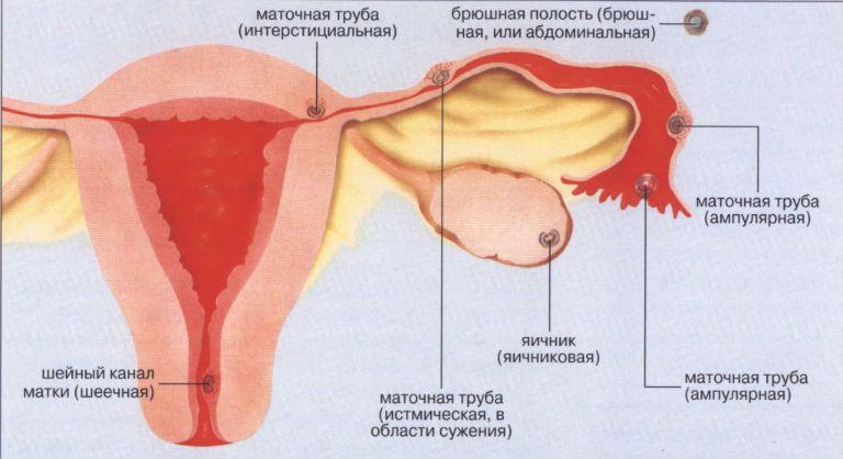 Внематочная беременность что это такое: фото
