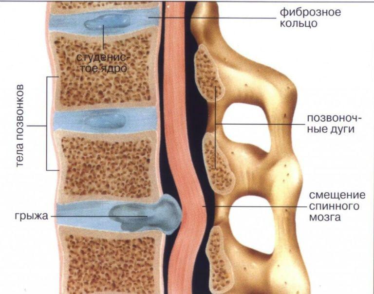 Грыжа межпозвоночного диска: симптомы, фото