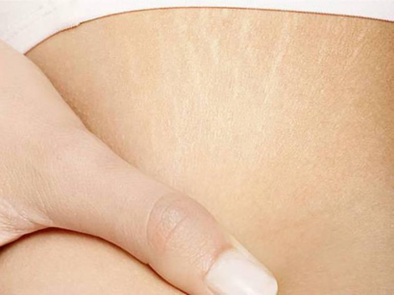 Как бороться с растяжками на теле в домашних условиях