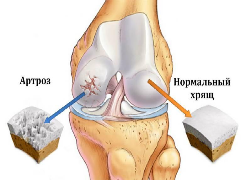 Причины возникновения артроза суставов