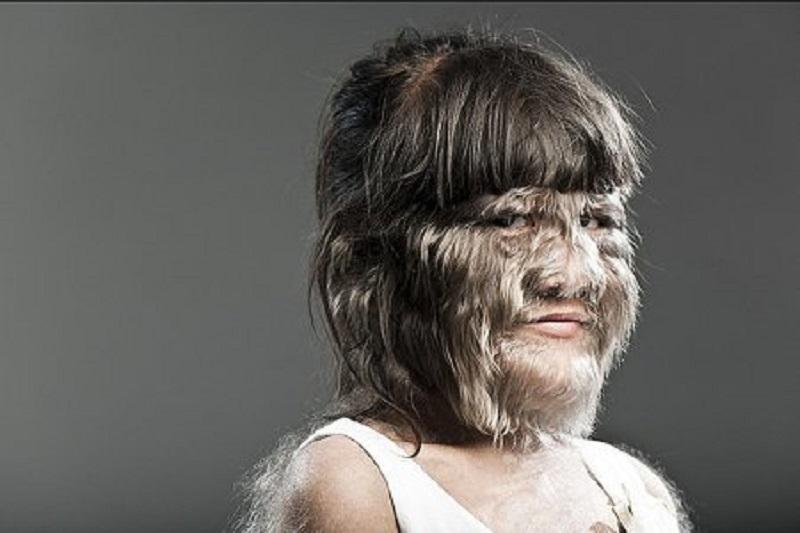 повышенный волосяной покров на лице и теле