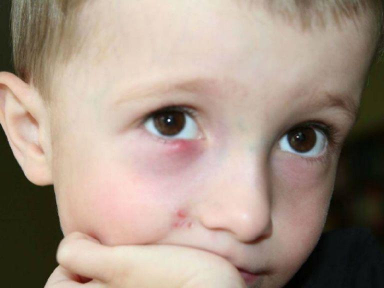 Ячмень на глазу как лечить быстро дома у ребенка