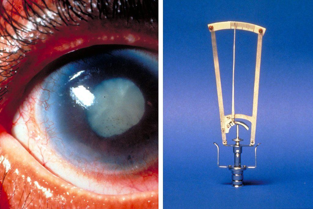 профилактика катаракты