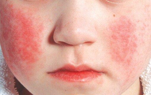 сыпь при скарлатине у детей фото