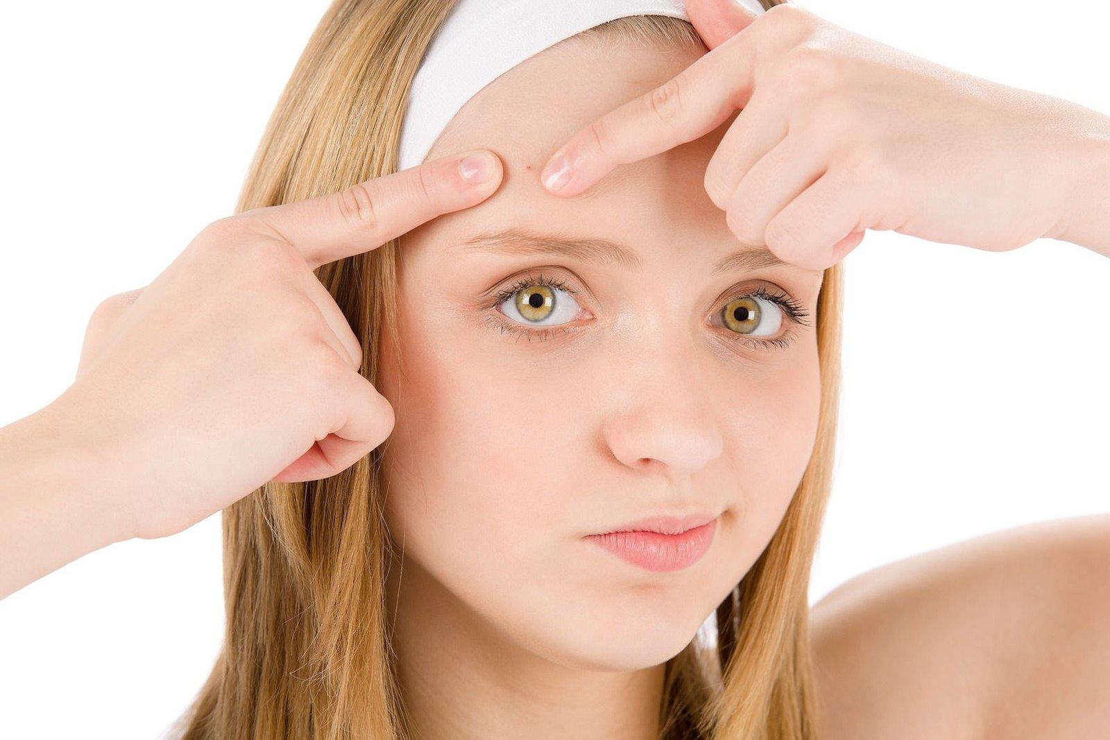 Во сколько лет проходят подростковые прыщи: на лице или спине