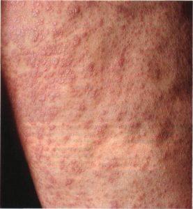 Сифилитическая сыпь фото у мужчин и симптомы