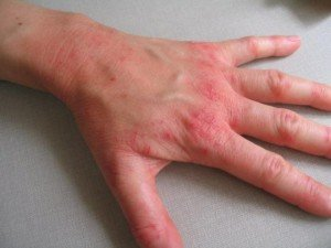 аллергия на бытовую химию кожа рук