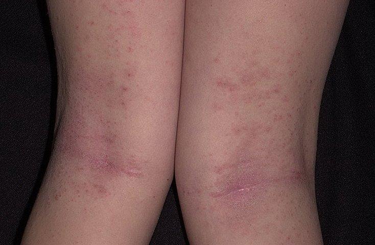 Атопический дерматит у ребенка на сгибах