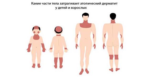 какие части тела попадают под атопический дерматит