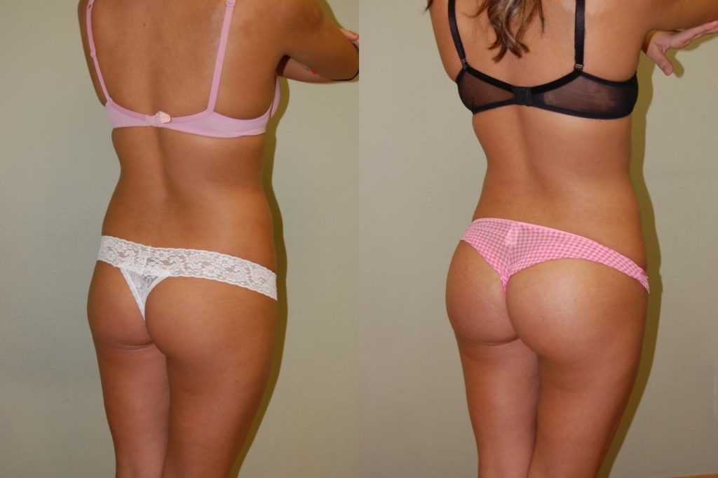 Накачанная попа до и после фото