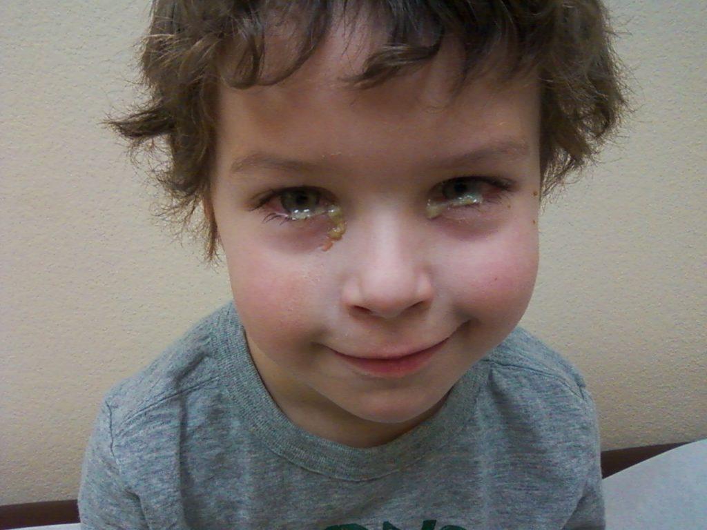 Конъюнктивит глаз лечение у детей сколько дней лечится