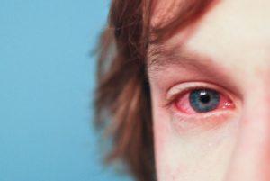 Конъюнктивит глаз