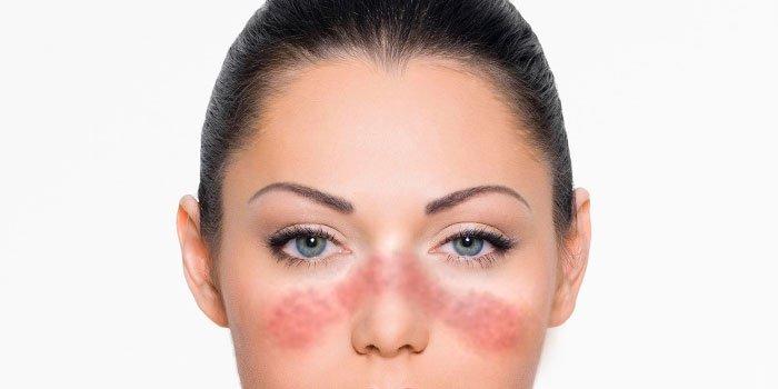 Красная волчанка симптомы и причины фото