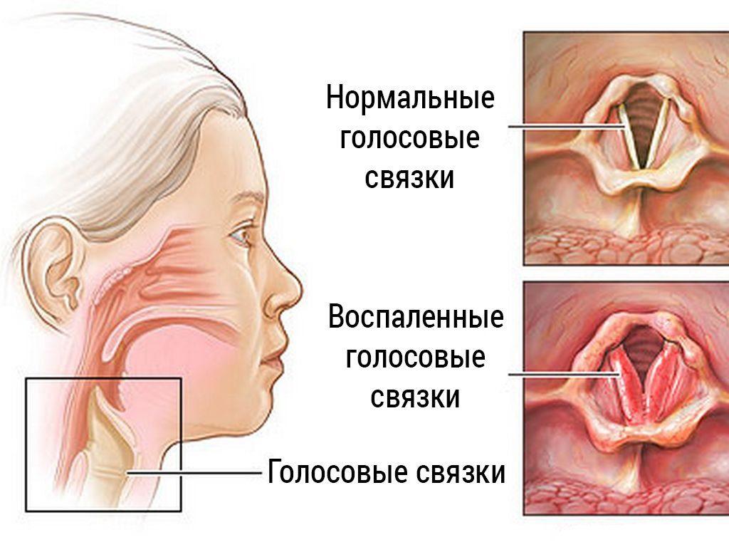 Лечение ларингита у взрослых
