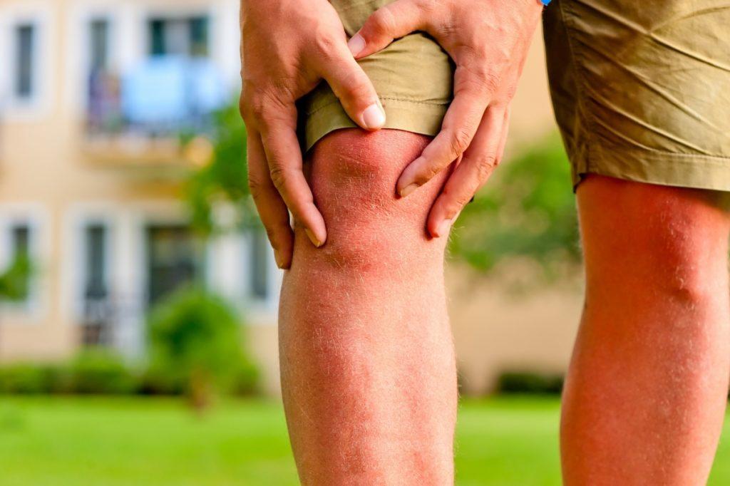 Подагра признаки и лечение фото ноги