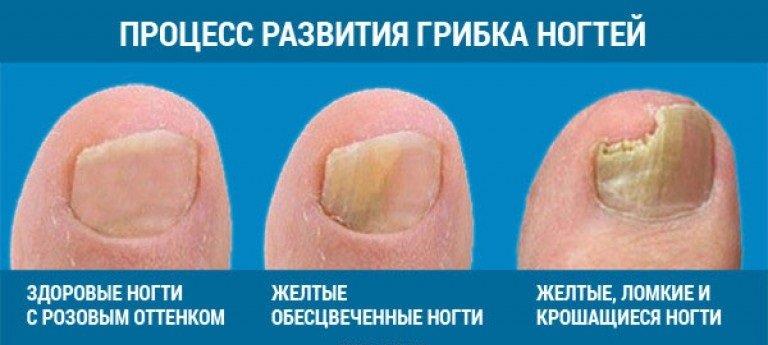 Как выглядит грибок ногтей на ногах начальная стадия