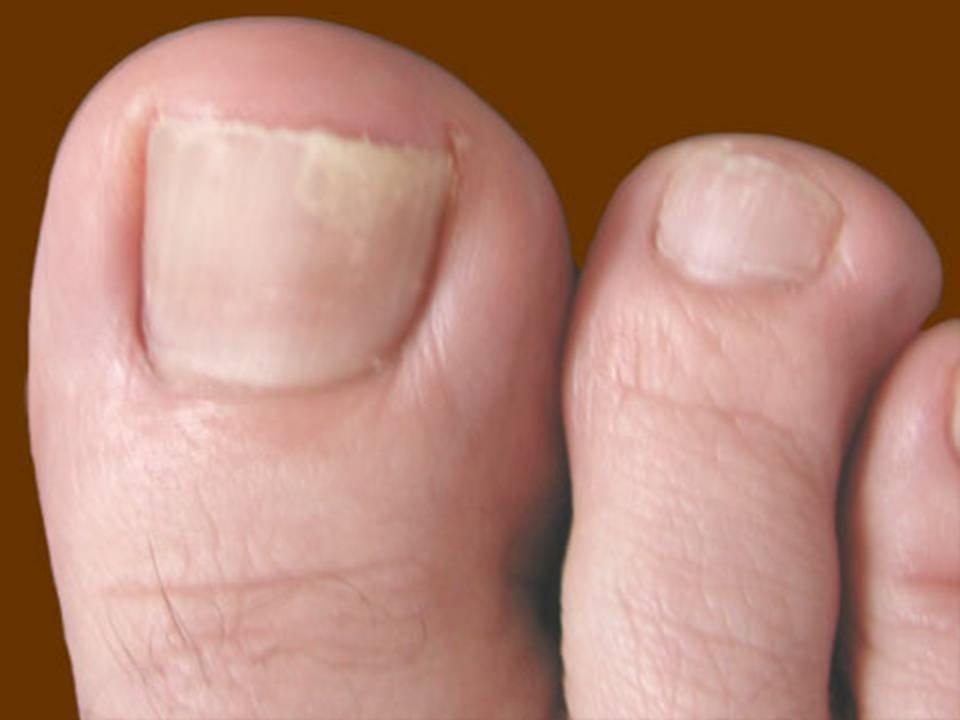 Как выглядит грибок ногтей на ногах начальная стадия фото