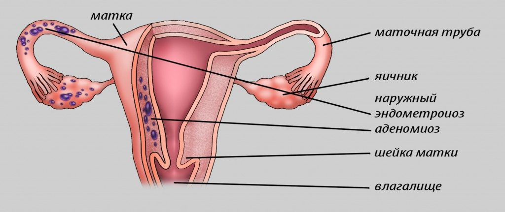 Аденомиоз матки, что это такое и как лечить