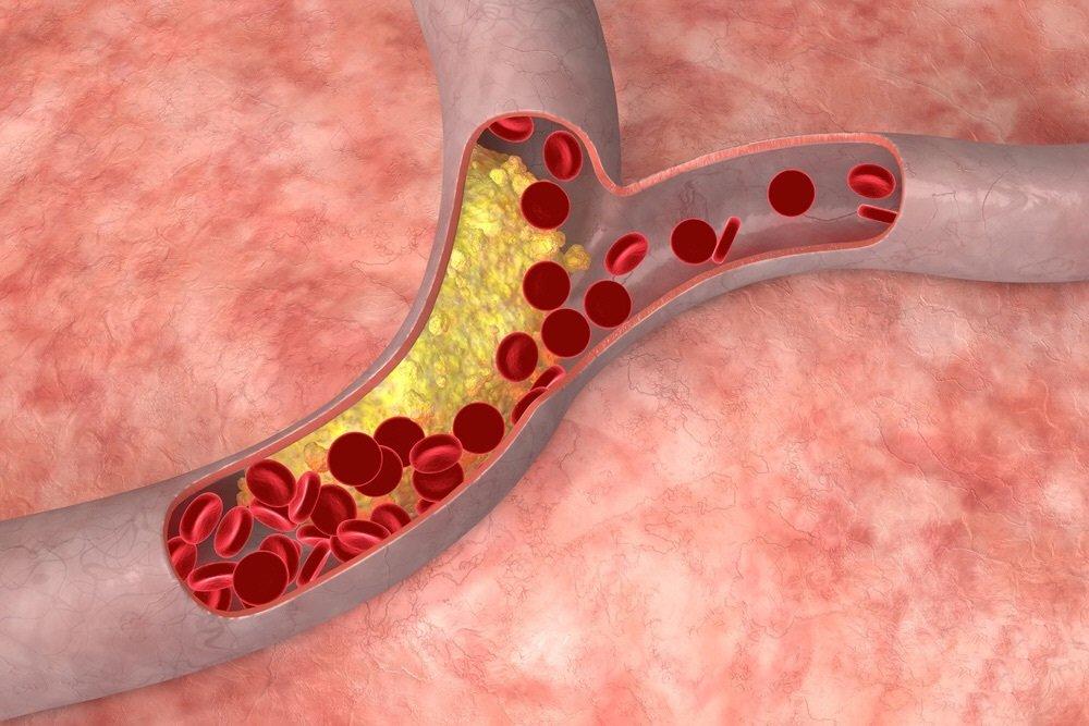 Норма холестерина в крови у женщин