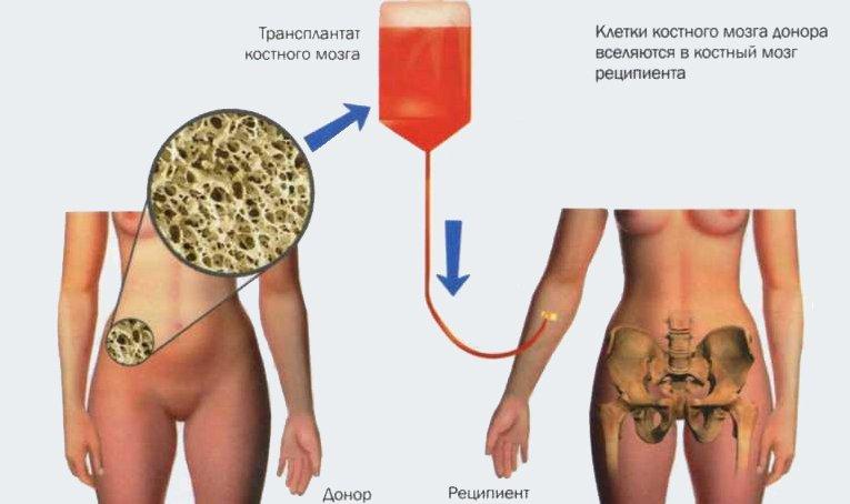Донор для пересадки костного мозга, как берут материал
