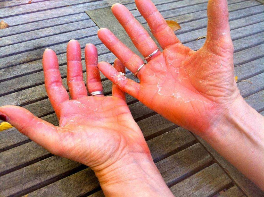 Что такое псориаз и от чего он появляется
