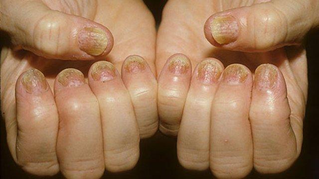 деформированные ногти при псориазе