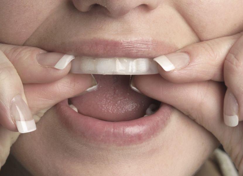 Отбеливающие полоски для зубов в домашних условиях
