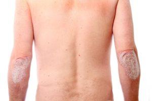 Что такое псориаз и от чего он появляется и как его лечить