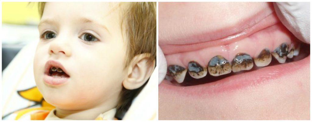 Что будет если не чистить зубы фото для детей